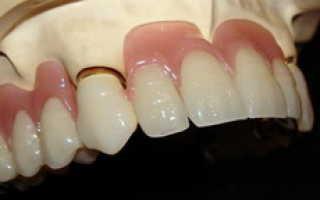 Зубные протезы из пластмассы