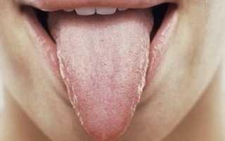Глоссит симптомы лечение