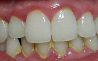 Накопление зубного камня