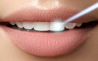 Лечение кариеса зубов лазером