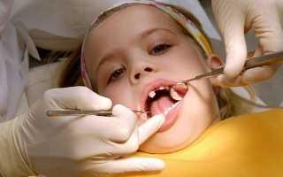 Периодонтит молочного зуба