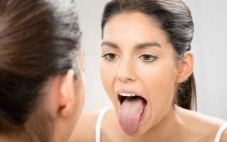 Глоссит языка у ребенка