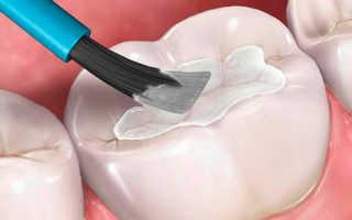Герметизация фиссур зубов у детей и взрослых