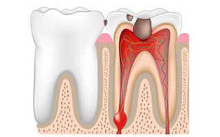 Воспаление корня зуба симптомы