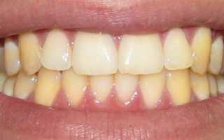 Желтые зубы у взрослых и у детей