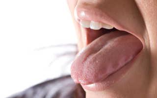 Воспаление языка причины