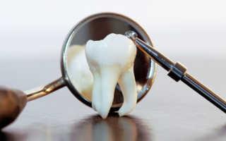 Ретинированный зуб дистопированный