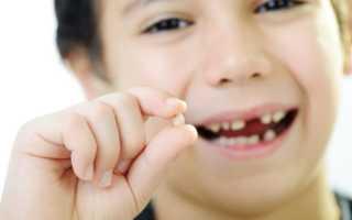 Как выдернуть молочный зуб в домашних условиях