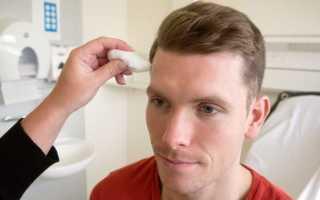 Чем лечить тройничный нерв на лице