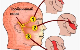 Тройничный нерв симптомы и лечение