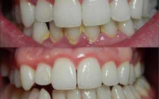 Зубная паста для удаления зубного камня