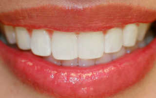 Прикус зубов правильный и неправильный