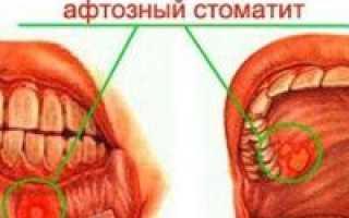 Чем лечить афтозный стоматит у взрослых