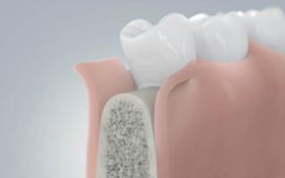 Имплантация зубов без костной пластики