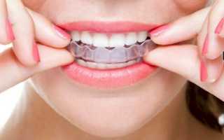 Детские и взрослые трейнеры для зубов