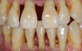 Как спасти зубы при пародонтозе