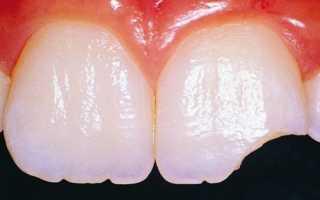Причины крошения зубов у взрослых