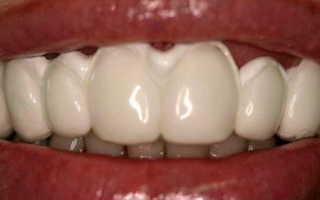 Что такое реминерализация зубов