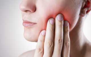 Какую таблетку выпить от зубной боли