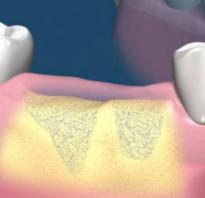 Наращивание костной ткани перед имплантацией зубов