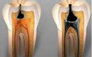 Кариес зубов классификация