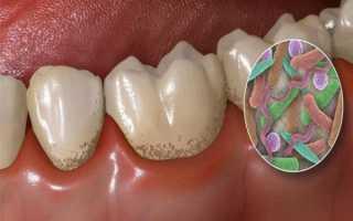 Как отбелить зубы с помощью соды в домашних условиях