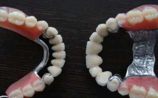 Протезирование зубов бюгельными протезами