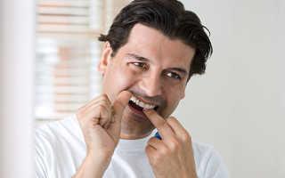 Десна кровоточат при чистке зубной нитью
