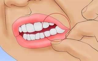 Оголяется шейка зуба