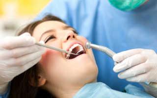 Что такое поверхностный кариес Причины появления и стоимость лечение