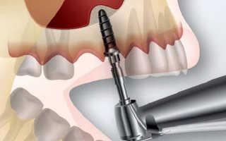 Синуслифтинг при имплантации зубов