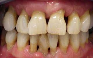 Красная десна вокруг зуба