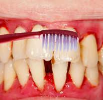 Кровоточат десны при чистке зубов лечение