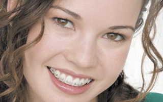 Брекеты без удаления зубов