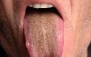 Почему коричневый налет на языке