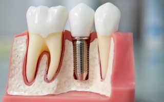 Методы и этапы установки имплантов зуба