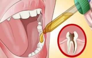 Как вылечить зубную боль в домашних условиях быстро