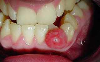 Удаление зуба с кистой последствия