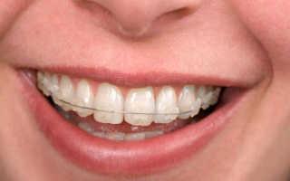 Сапфировые брекеты на зубы