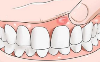 Воспаление надкостницы зуба симптомы