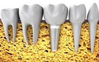 Срок службы имплантов зубов