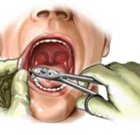 Сколько дней заживает десна после удаления зуба мудрости