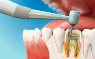 Как чистят каналы зуба