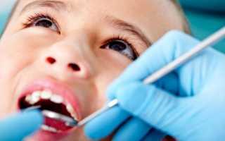 Пульпит молочного зуба у ребенка