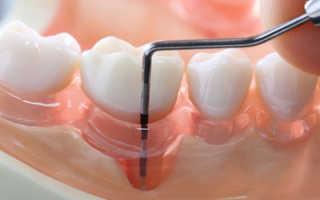 Карман в десне между зубами