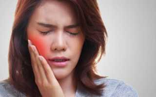 Воспаление слюнных желез
