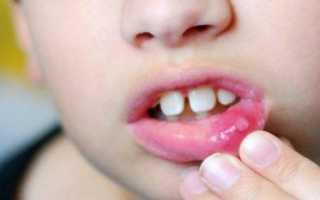 Вирусный стоматит у детей