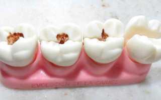 Причины возникновения и стадии развития кариеса зубов