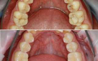 Как делают пломбу на зуб
