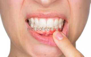 Лекарство для болезни десен